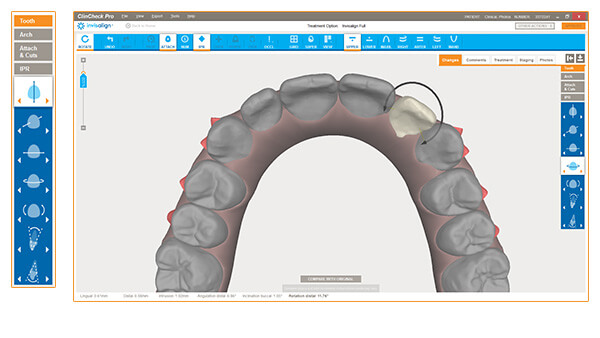 ClinCheck Occlusal